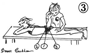 Myotherapy on Gluteal Muscles - drawing by Bonnie Prudden