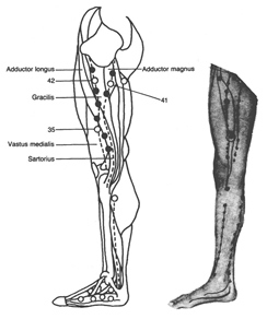 Adductor Muscles with Trigger Points